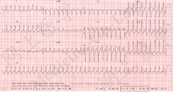 A 25 Year Old Graduate Student Was Brought To The Emergency Department In The Middle Of The Night Complaining Of Rapid Pounding Of His Heart A Constrictive Feeling Inside His Chest Shortness