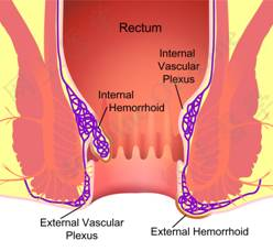 how to use preparation h for external hemorrhoids