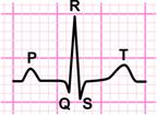 in an ecg the p wave represents