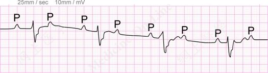 Ventricular Ectopic Beats Ventricular Escape Beats