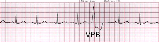 Ventricular Ectopic Beats Ventricular Premature Beat