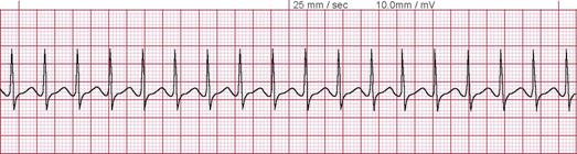 cardiac activity and ventricular tachycardia vt waveform Ventricular tachycardia (vt) is a type of tachycardia that originates within the poor chambers of the center, called the ventricles the ventricles will be the most important pumps of the heart and soul, therefore, when they are affected it can easily deteriorate into a life-threatening dysrhythmia, such as, ventricular fibrillation (vf) or.