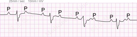 Prolonged QRS Interval
