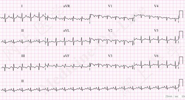 The Classical ECG Signs Of Acute Pulmonary Embolism Are SIQIIITIII Which Mnemonics Representing Deep S Wave In Lead I Pathological Q III