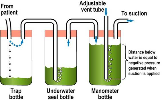 ... equals to the distance (in cm) this vent tube is below the water line