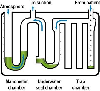 underwater seal drainage tube management What is an underwater seal drainage (uwsd)  chest tube placement  western health policy -management of intercostal catheters and underwater seal drains.